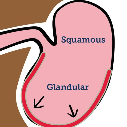 Gastric Ulcers Explained 2019